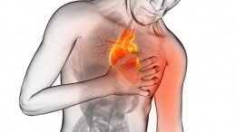 cardiovascular issues