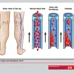 How much do you know about varicose veins?
