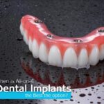 When Is All-On-4 Dental Implants The Best Option?